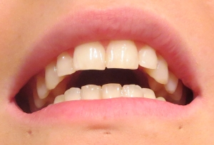 My teeth after using it - artificial light