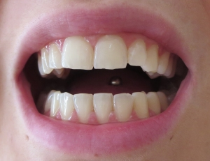 My teeth after using it - natural light